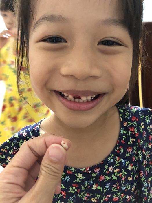 心紀錄。6Y4M 第一顆乳牙掉了